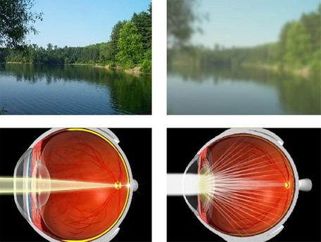 Cataract Surgery Cloudy Vision Blurred Vision