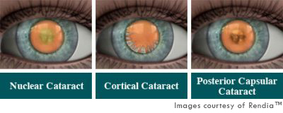Cataract Type
