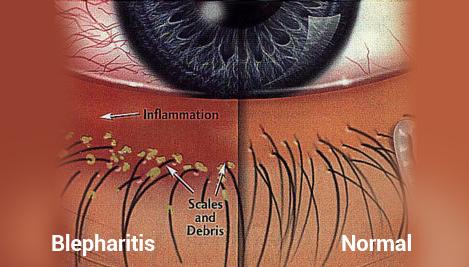 Blepharitis Itchy Eye Problem